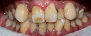 Lợi đổi màu và cao răng nhiều quanh răng