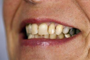 mòn men răng
