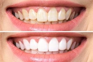 Nhiễm màu trên bề mặt răng