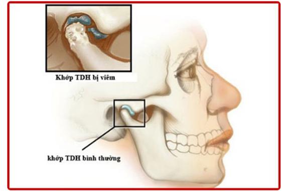 Rối loạn khớp thái dương hàm - Triệu chứng và phương pháp điều trị!