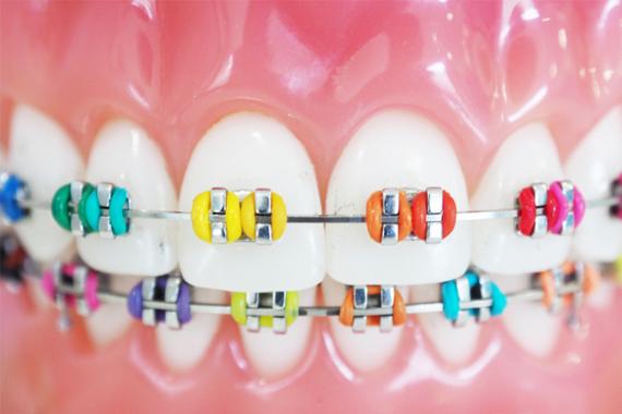 Niềng răng mắc cài - 99% người niềng răng chưa biết những điều này!