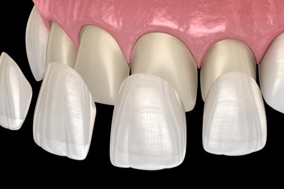 Trồng răng sứ để có nụ cười hoàn hảo - Địa chỉ nha khoa tốt nhất